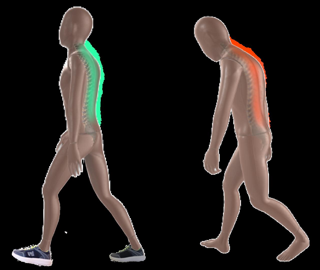 Laufen mit Rückenschmerzen im Vergleich