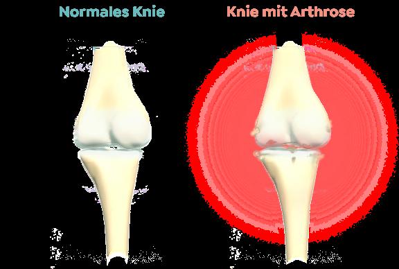 Knochen vergleich bei Arthrose
