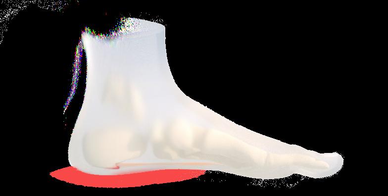 Fuß mit Fersensporn rechts